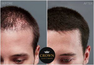#6. CROWN HAIR FIBERS Hair Thickening Fibers