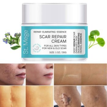 #9. St. Mege Scar Removal-Stretch Mark Removal Cream